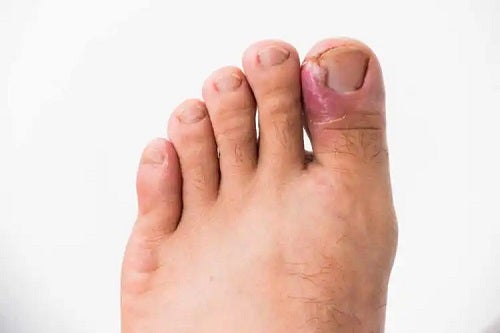 Infecțiile fungice ale unghiilor de la picioare