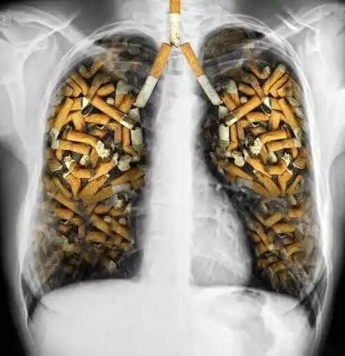 Plămâni de fumător
