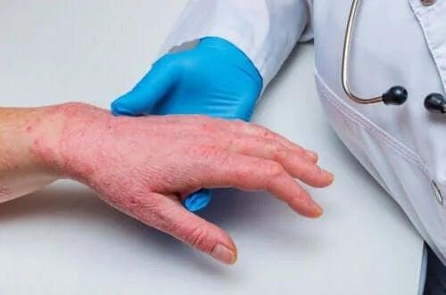 Legătura dintre psoriazis și bolile coronariene