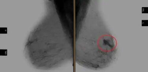 Radiografie necesară în tratamentul cu Trastuzumab