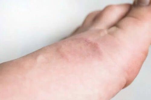 Simptomele și tratamentul granulomului anular