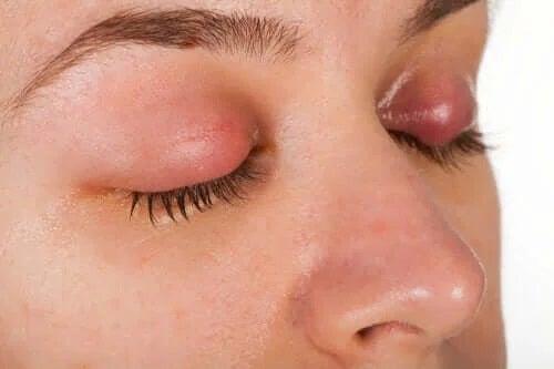 Simptome și tratamentul mătreții pleoapelor