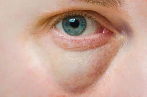 Cauzele și tratamentul pleoapelor umflate