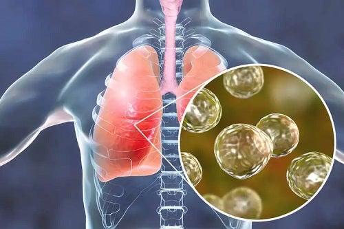 Tuberculoza afectează plămânii