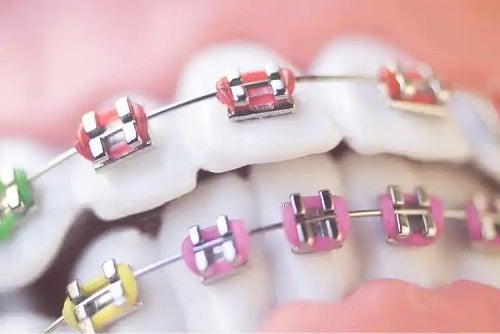 Aparat pentru ortodonția la copii