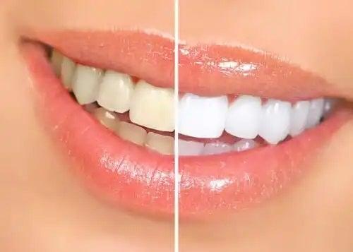 Dinți albiți profesional