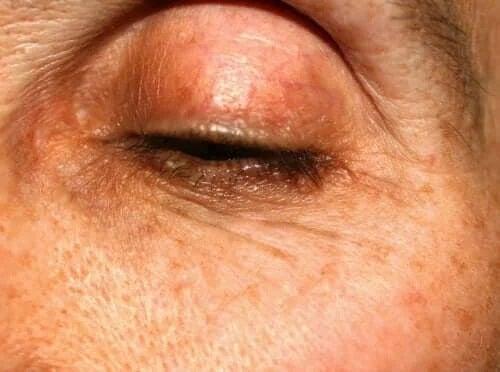 Disfuncțiile glandelor meibomiene: caracteristici