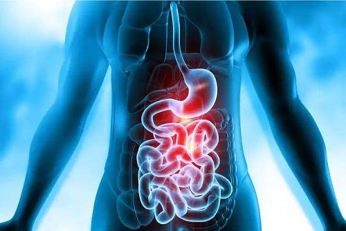 Fistulă gastrointestinală la om