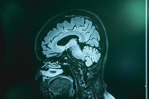 Infecția cu Naegleria Fowleri văzută la RMN