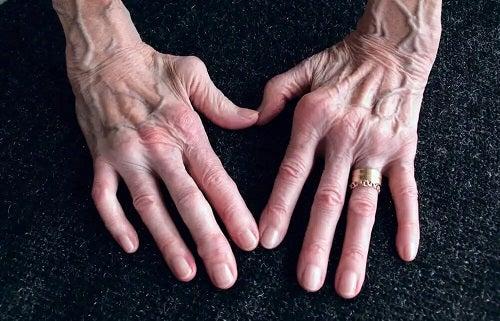 Mâini afectate de artrita reumatoidă
