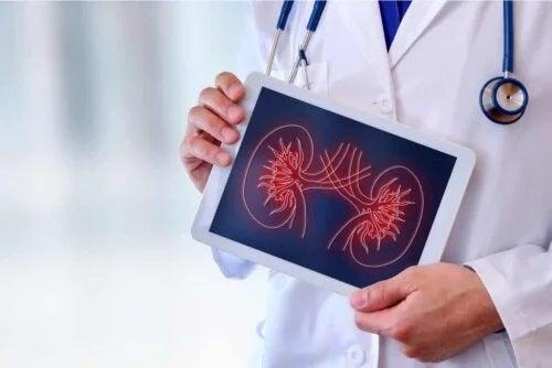 Medic care ține în mână un desen cu rinichi