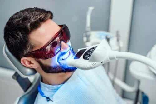 Cât timp se menține albirea dinților?