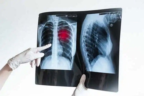 Sechlele după pneumonie văzute la radiografie