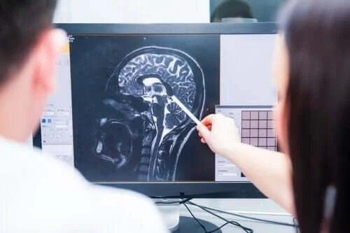 Simptomele timpurii ale sclerozei multiple