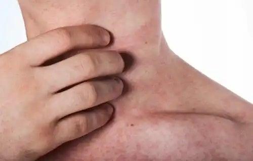 Persoană care nevoie de tratamentul alergiei la latex