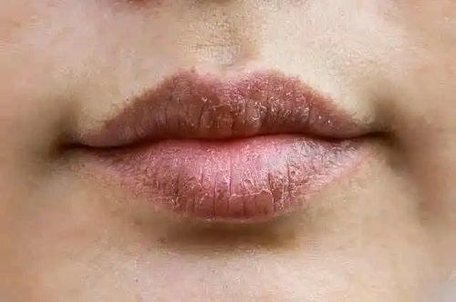 Utilizările lanolinei pe buze