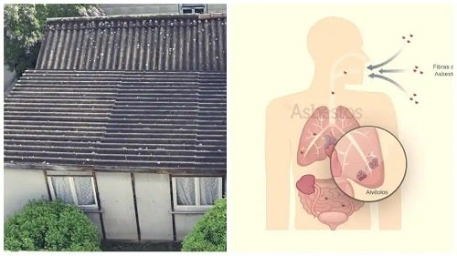 Simptomele azbestozei cauzate de internită