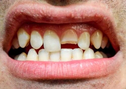 Traumatismul dentar: ce este și ce tipuri există?