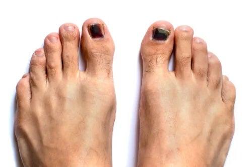 Unghiile negre la picioare: cum să le tratați?