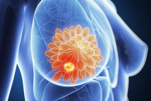 Vaccinul contra cancerului de sân a vindecat un pacient