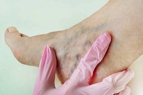 Boli cauzate de purtarea tocurilor la nivelul picioarelor