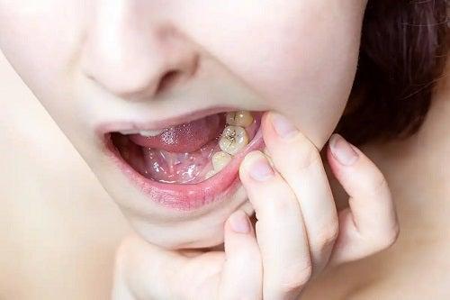 Carii dentare