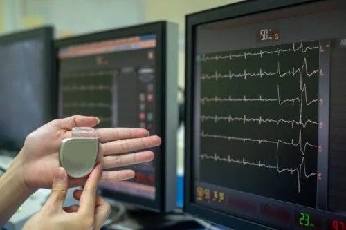 Ce este un stimulator cardiac și cum funcționează?
