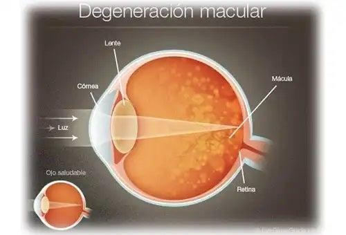 Degenerescența maculară la om