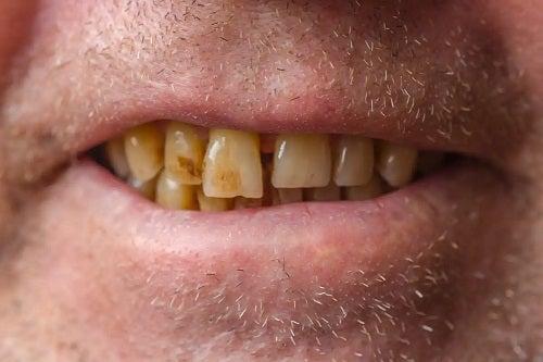 Dinți afectați de tutun