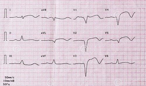 Rezultatele unui EKG
