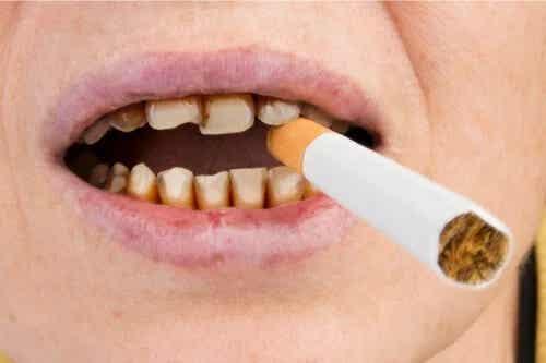 Cum afectează tutunul sănătatea dinților?