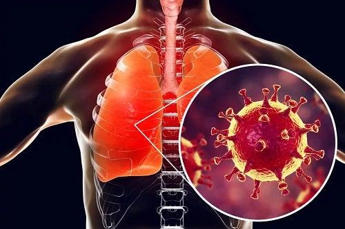 Infecție la plămâni