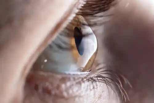 Pahimetrie corneană: ce este și cum se efectuează procedura?